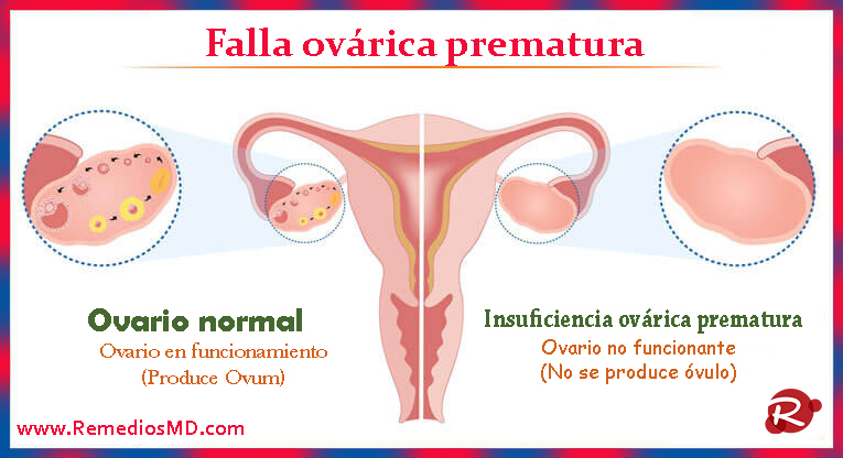 Premature ovarian failure2